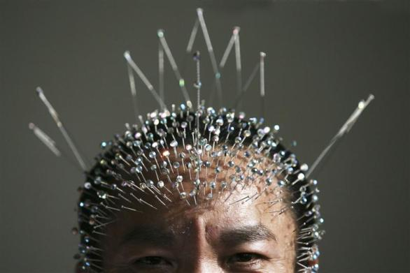 wei_shengchu_60_displays_acupuncture_needles_in_hi_2172839354